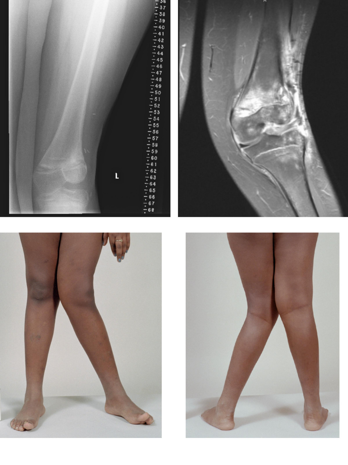 Valgus and varus deformity after wide-local excision