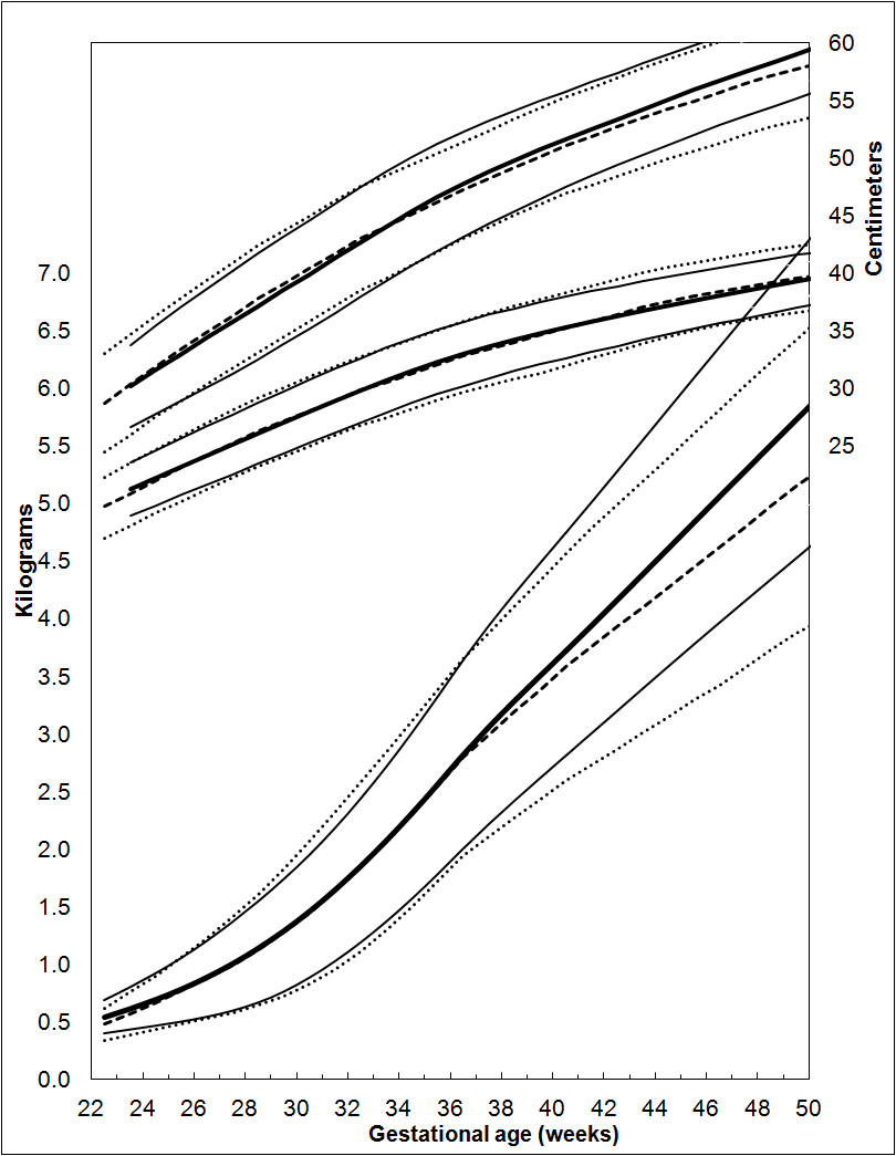 A systematic review and meta analysis to revise the fenton growth figure 11 comparison of the revised growth chart geenschuldenfo Gallery