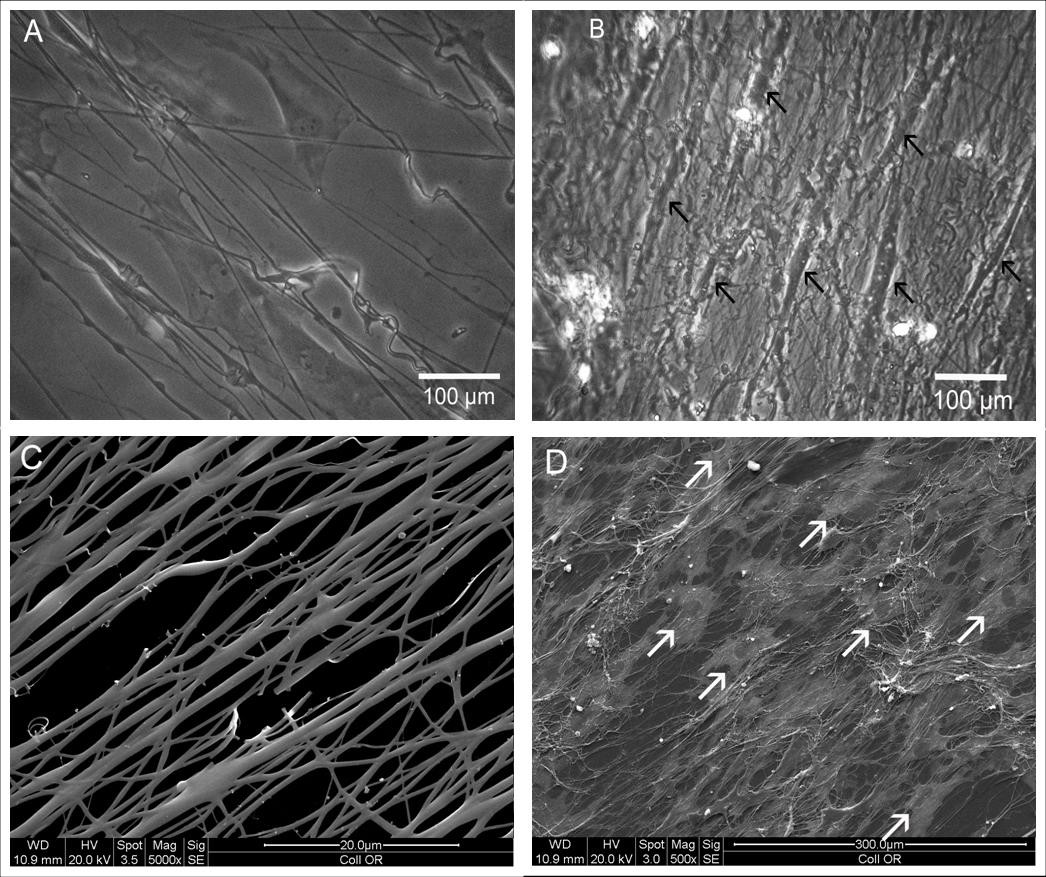Collagen matrices from sponge to nano: new perspectives for