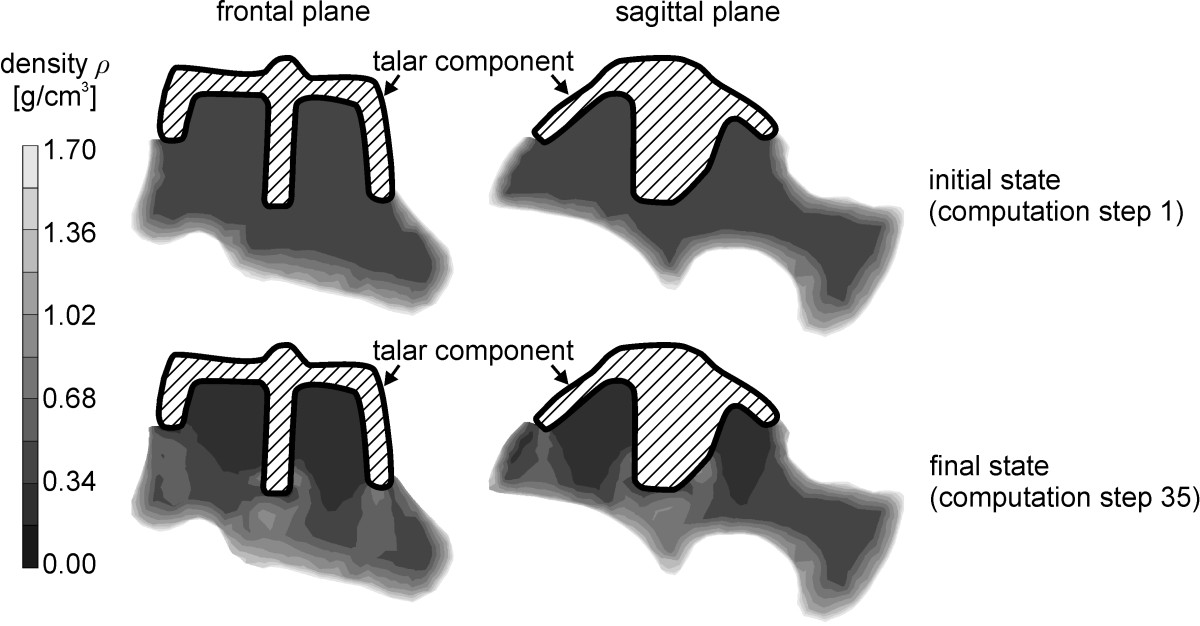 Numerical simulation of strain-adaptive bone remodelling in the