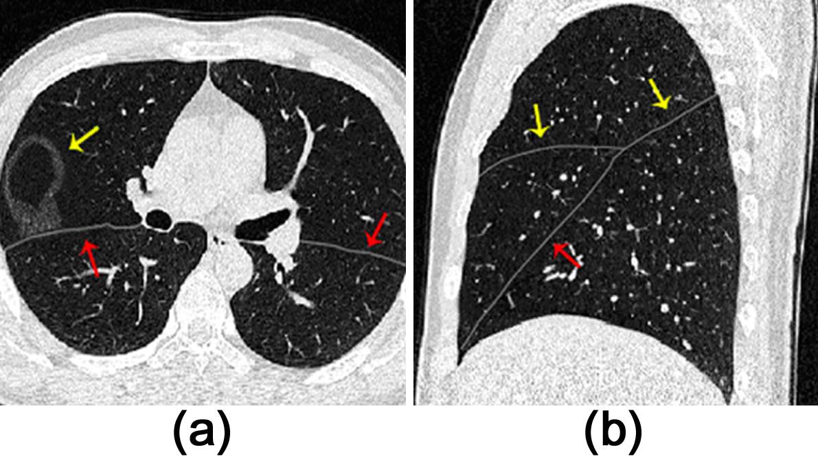 Automatic Pulmonary Fissure Detection And Lobe Segmentation In Ct