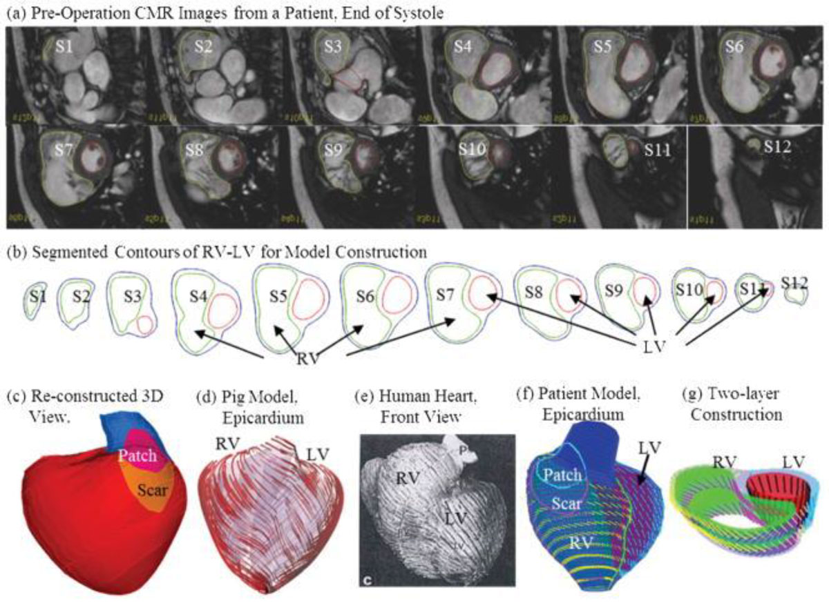 Right ventricle-pulmonary circulation dysfunction: a review