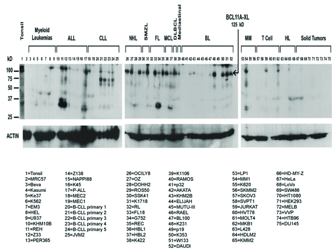 5dfeecb0ca2 Functional studies of BCL11A  characterization of the conserved ...