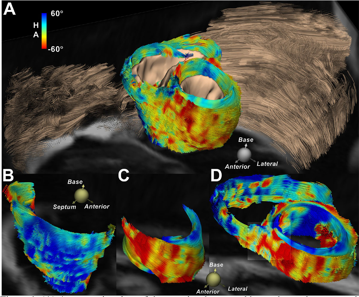 In vivo fiber tractography of the right and left ventricles
