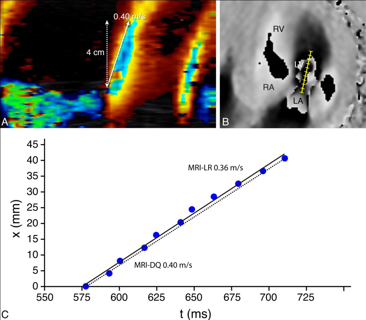 High-temporal velocity-encoded MRI for the assessment of left