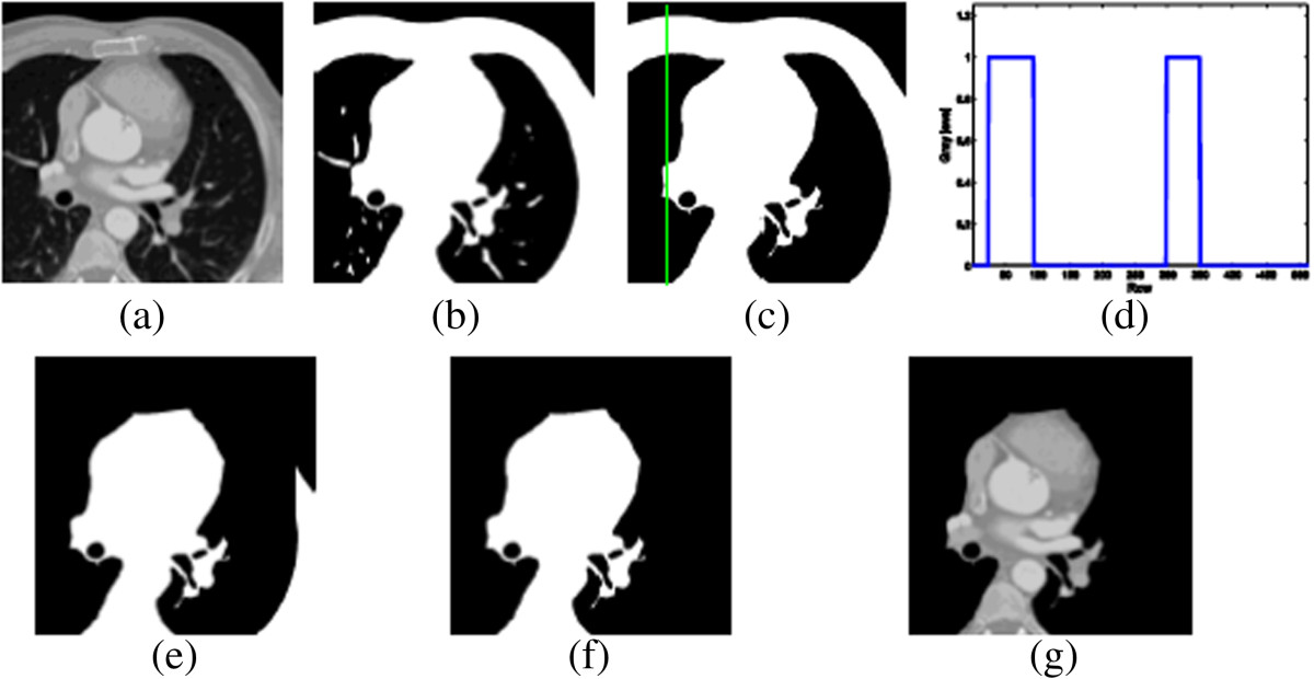 Automatic image-based segmentation of the heart from CT