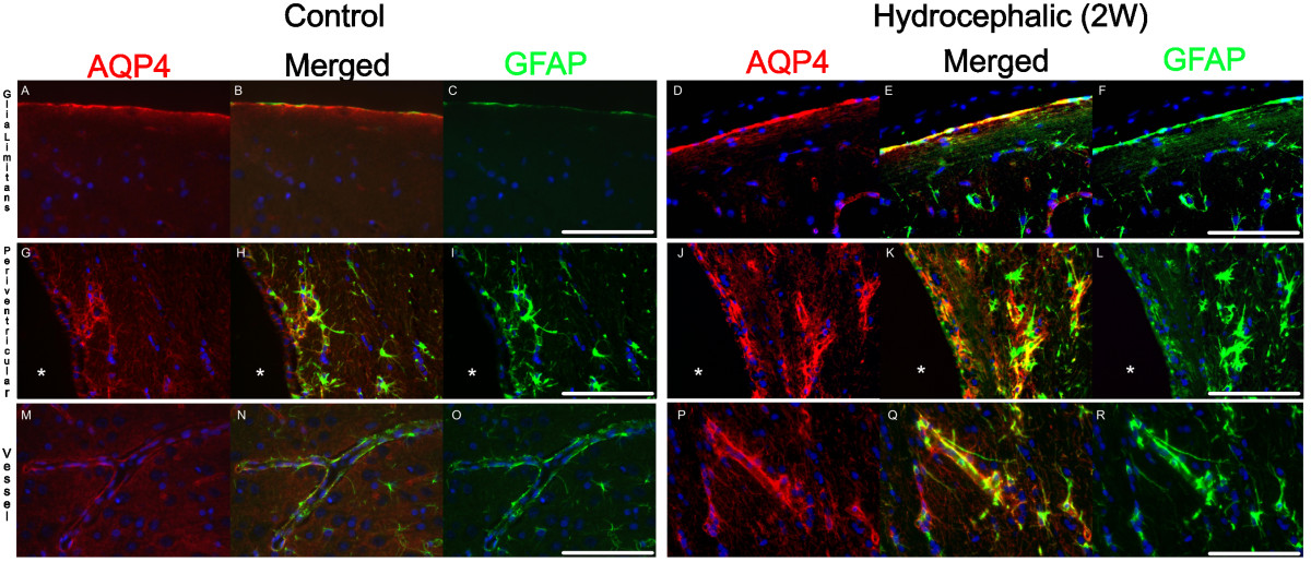 Hydrocephalus Induces Dynamic Spatiotemporal Regulation Of