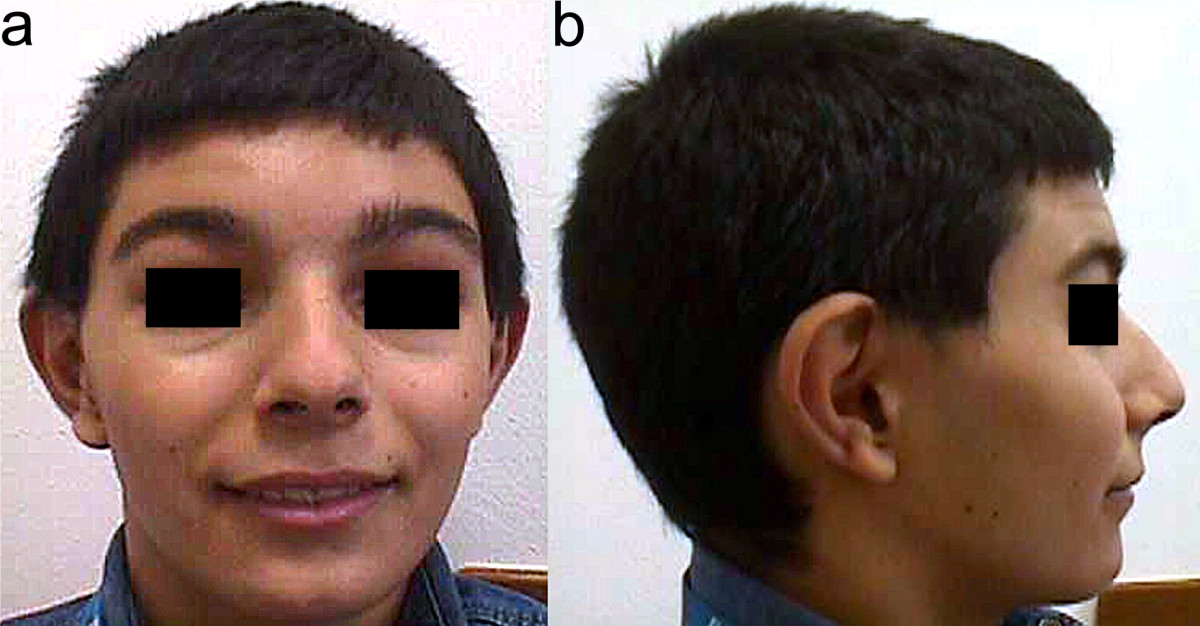 KBG syndrome | SpringerLink
