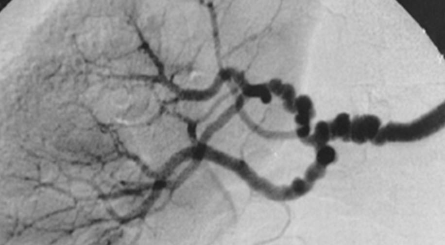 Fibromuscular dysplasia   SpringerLink