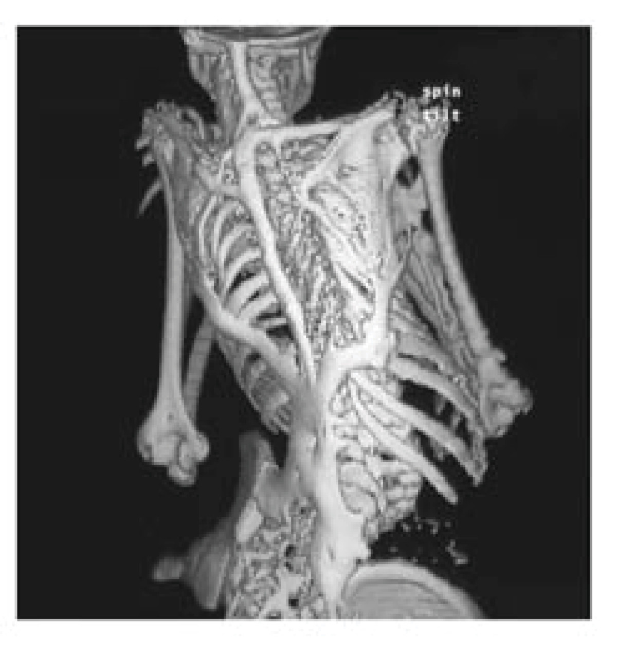 Fibrodysplasia Ossificans Progressiva: Clinical and Genetic