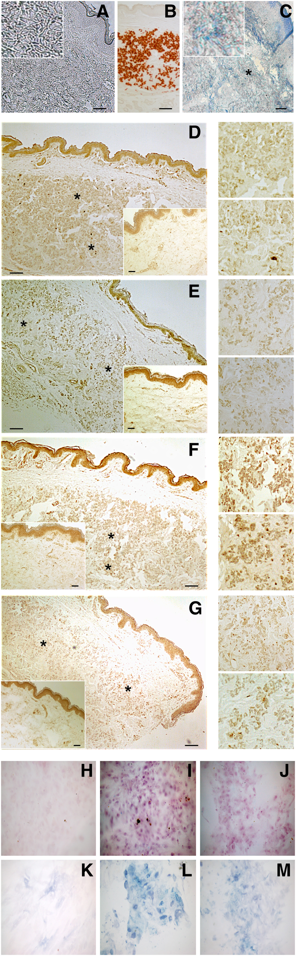 Perturbation Of Specific Pro Mineralizing Signalling Pathways In