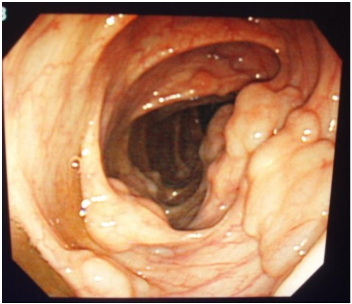 Improvement of pneumatosis cystoides intestinalis after