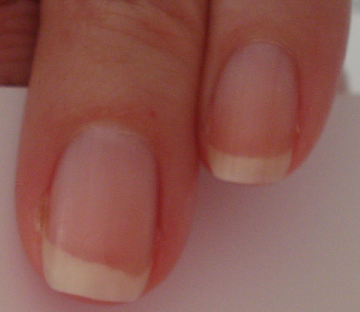 Abnormal fingernail beds following carbon monoxide poisoning
