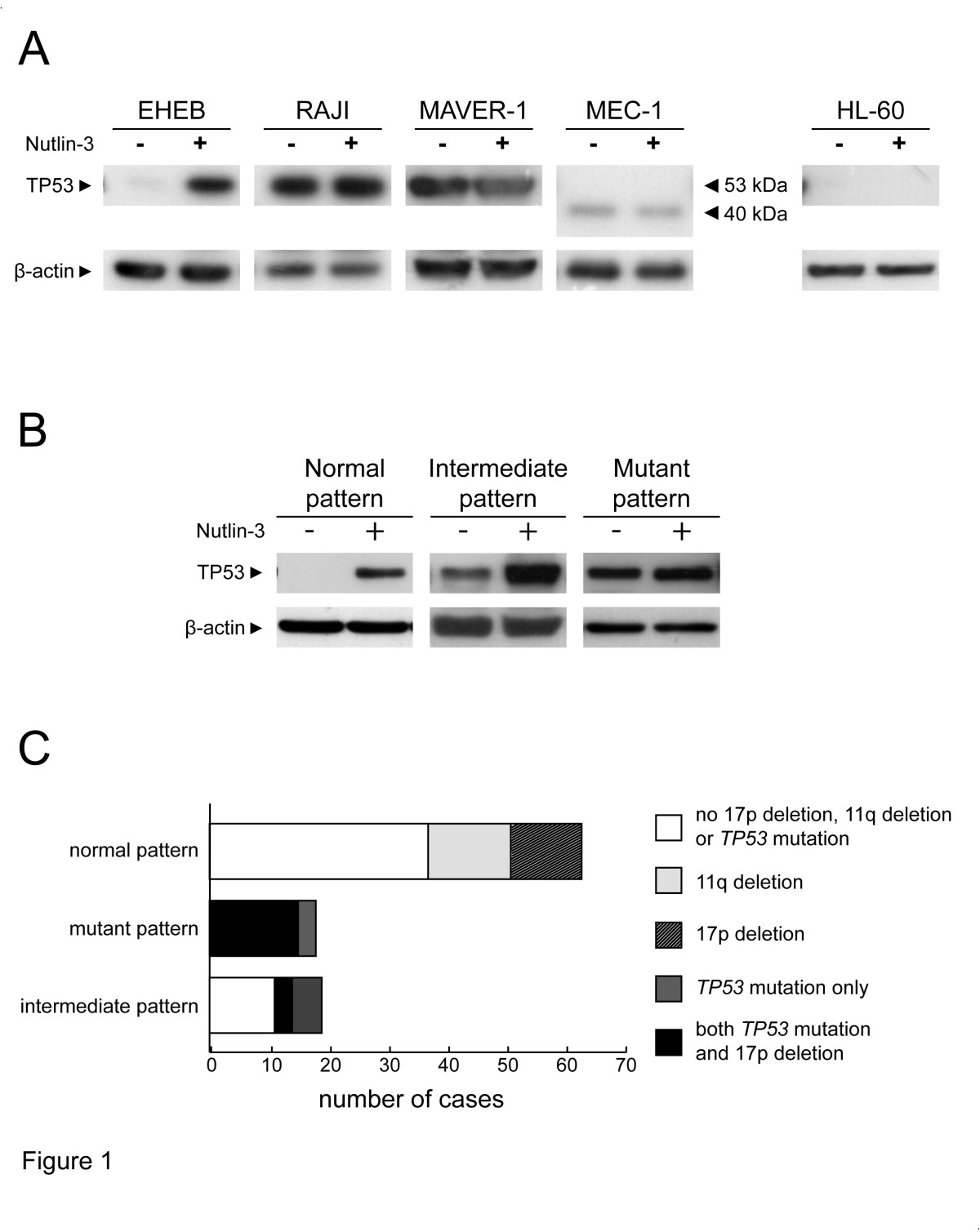 Detection of TP53 dysfunction in chronic lymphocytic