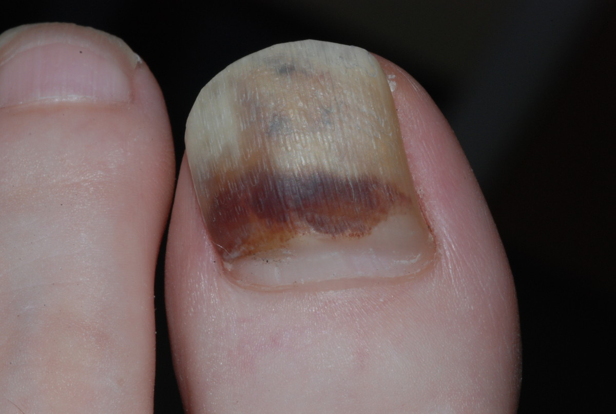 Clinical guidelines for the recognition of melanoma of the foot and ...