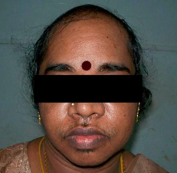 Excess facial hair growth — img 13