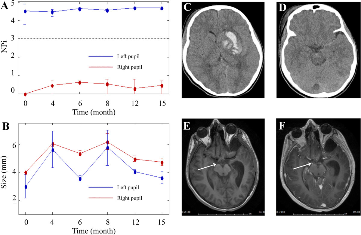 Infrared pupillometry, the Neurological Pupil index and unilateral ...