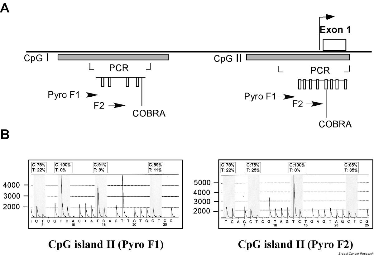 the correlation between her2 status and Evaluation of her2/neu status by immunohistochemistry using computer-based image analysis and correlation with gene amplification by fluorescence in situ hybridization assay: a 10-year experience and impact of test standardization on concordance rate.