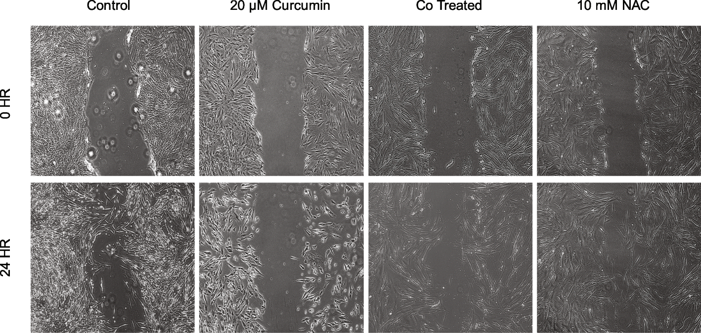 Curcumin induced oxidative stress attenuation by N-acetylcysteine co