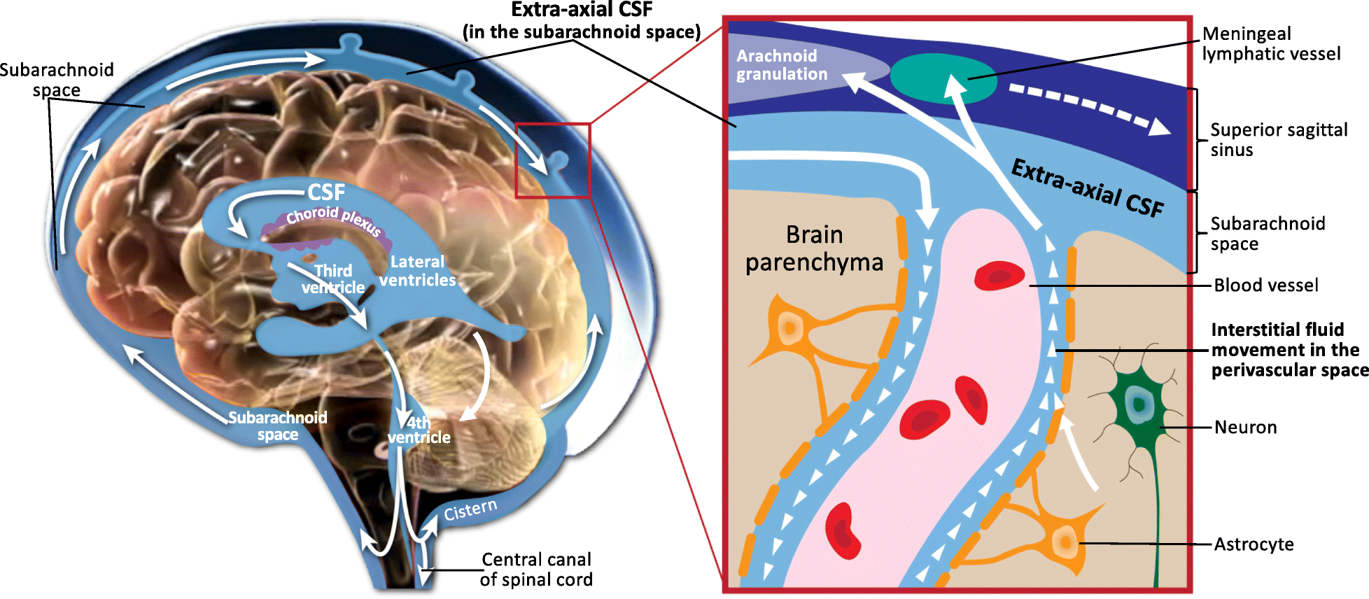 Excess Brain Fluid May Forecast Autism >> Cerebrospinal Fluid And The Early Brain Development Of