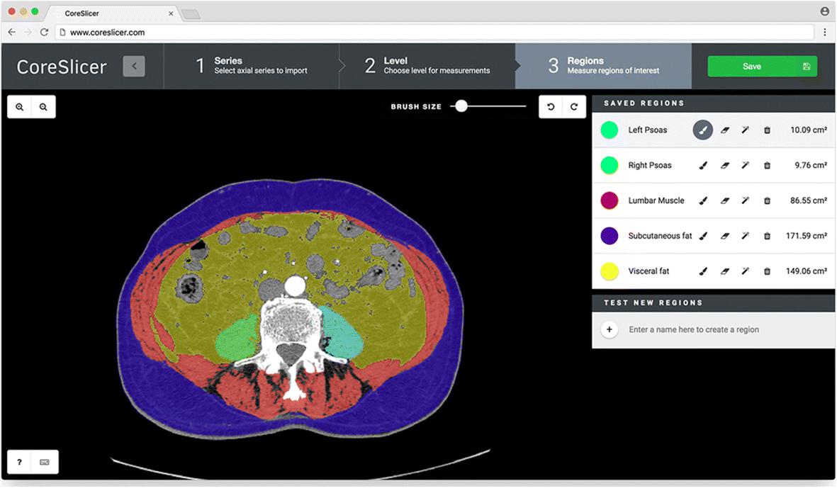 CoreSlicer: a web toolkit for analytic morphomics | SpringerLink