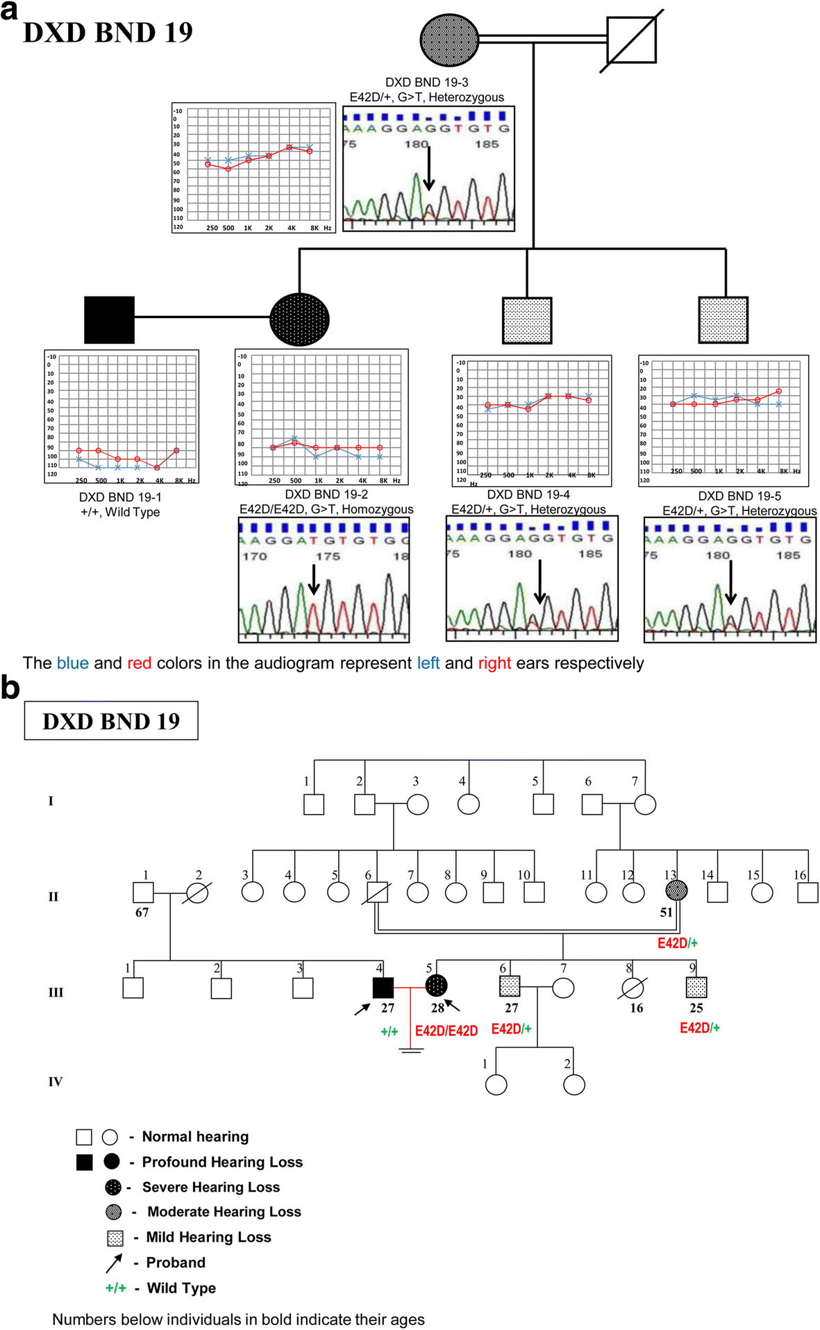 Role of DFNB1 mutations in hereditary hearing loss among