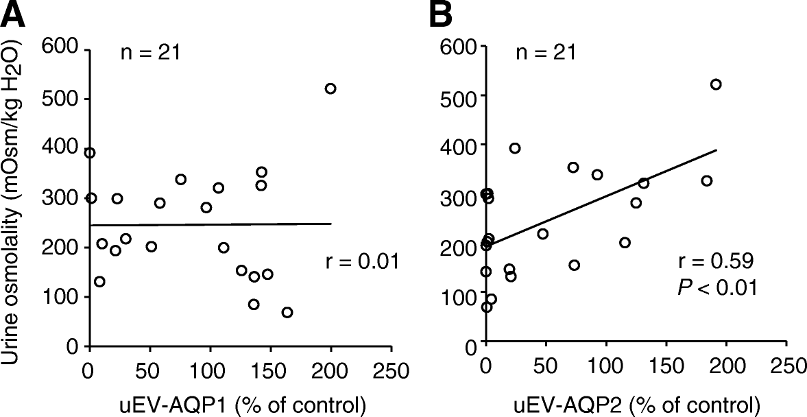 Urinary extracellular vesicular release of aquaporins in patients