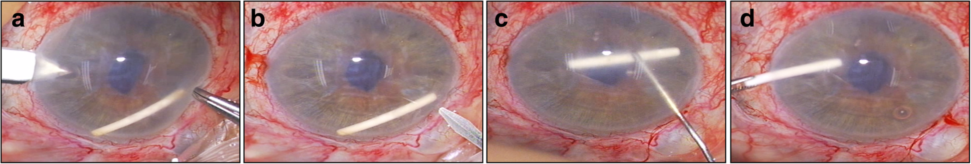 Risk factors for and management of anterior chamber