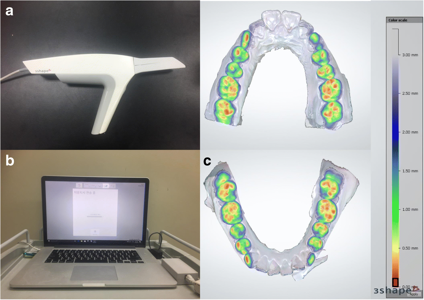 Comparison of the occlusal contact area of virtual models