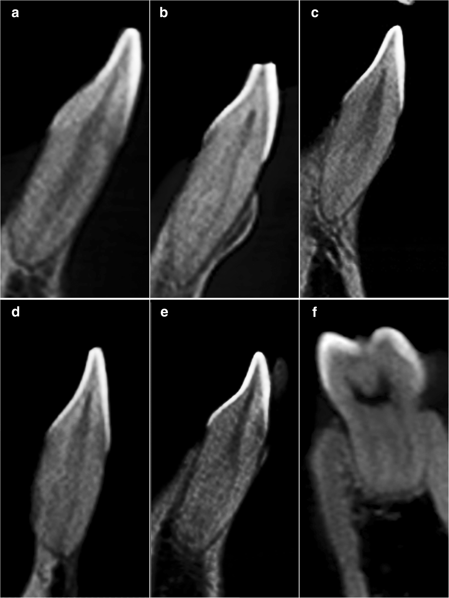 Root canal morphology of permanent teeth in a Malaysian