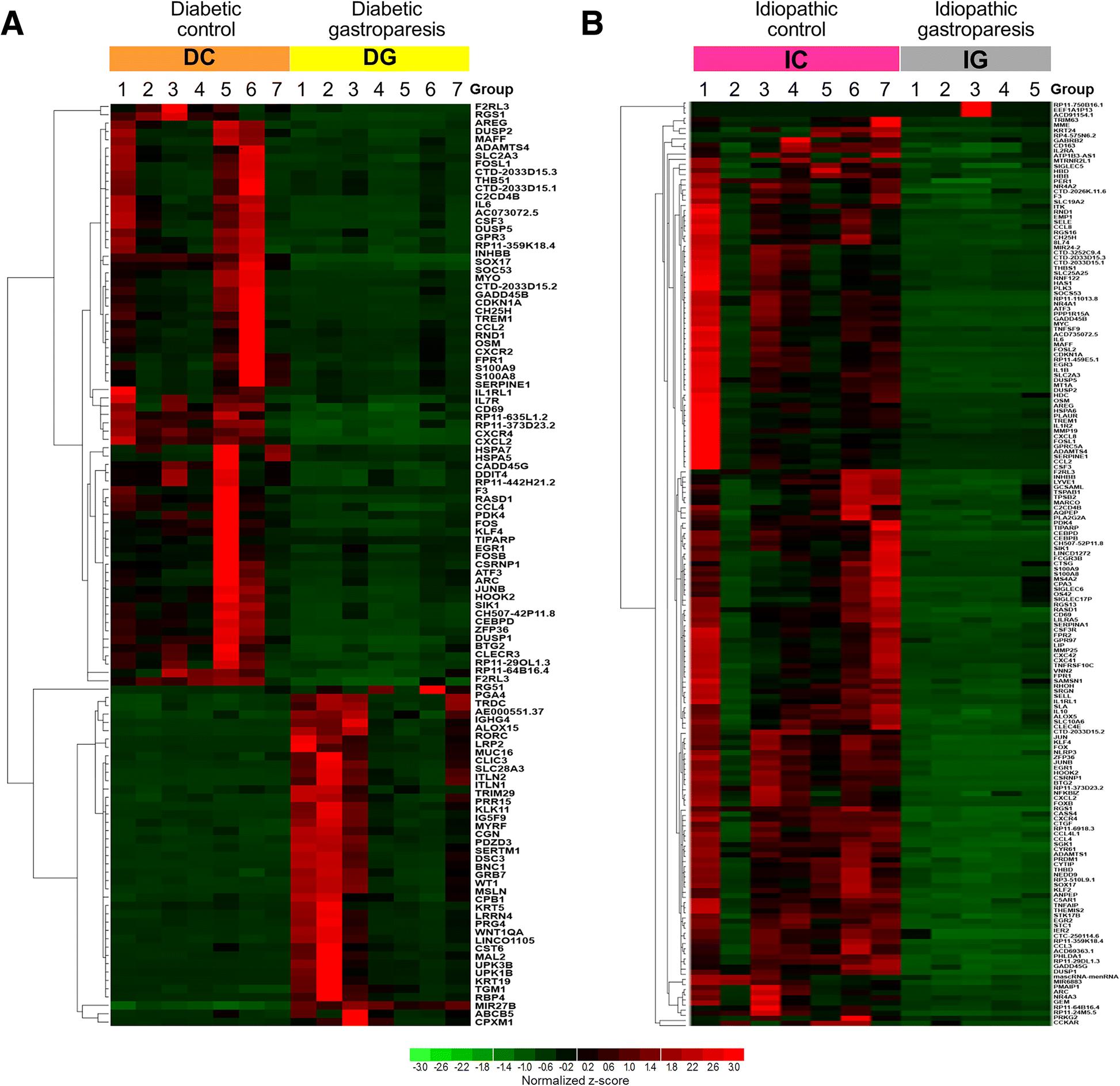Transcriptomic signatures reveal immune dysregulation in