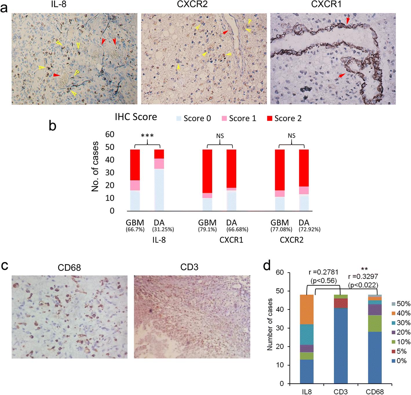 Il 8 Cxcr1 2 Signalling Promotes Tumor Cell Proliferation Invasion Http Wwwelectronicsprojectdesigncom Bargraphledhtml Open Image In New Window