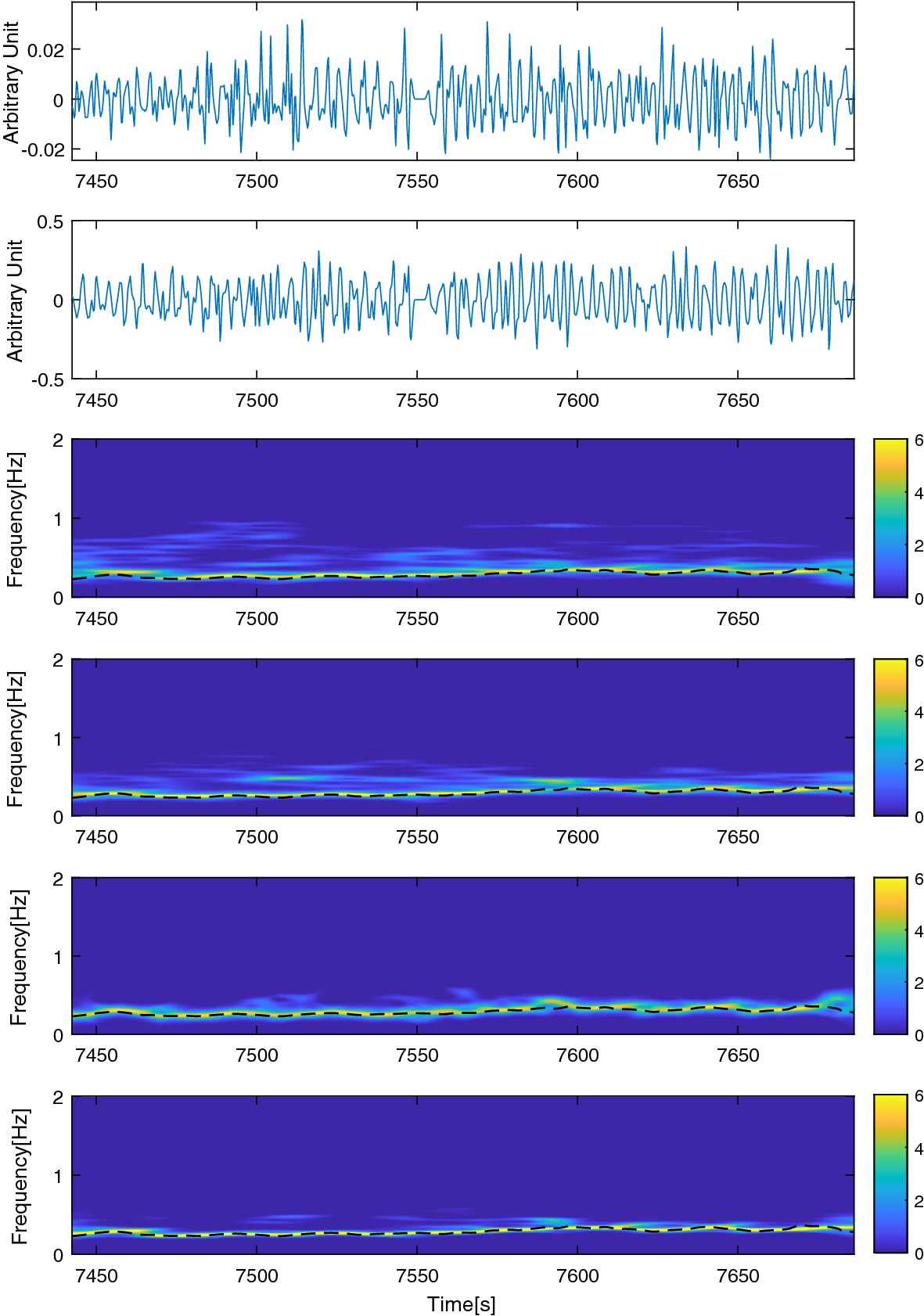Spectral fusion-based breathing frequency estimation