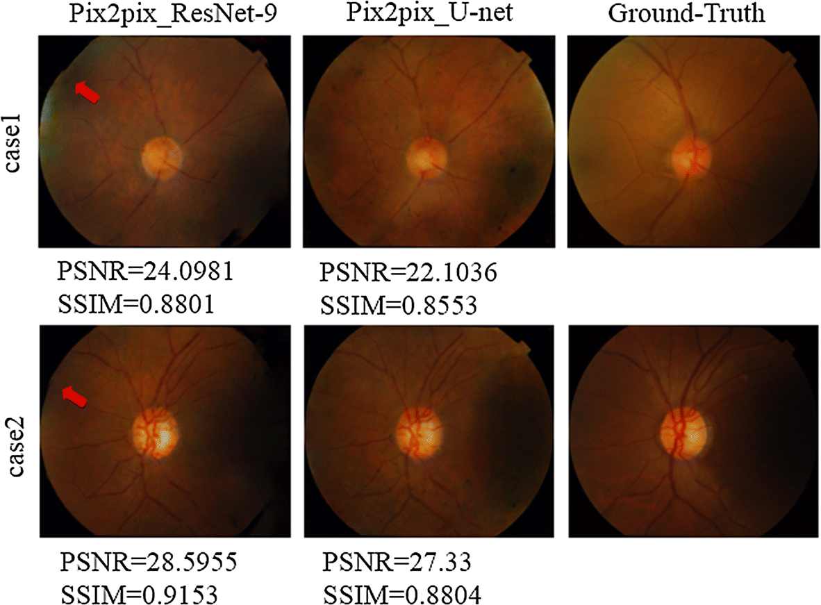 Retinal image synthesis from multiple-landmarks input with