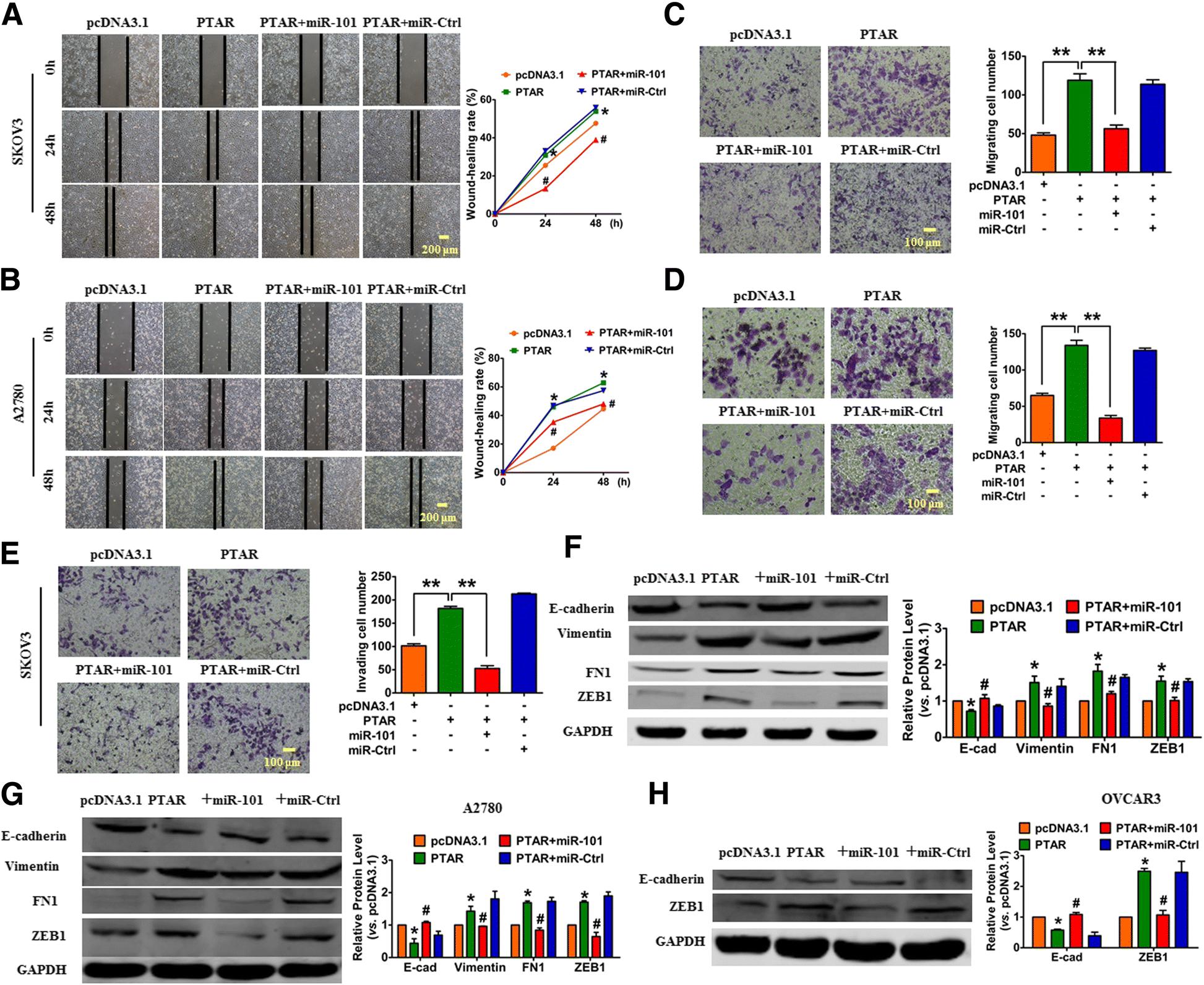 Ana Walczak Nude lncrna ptar promotes emt and invasion-metastasis in serous