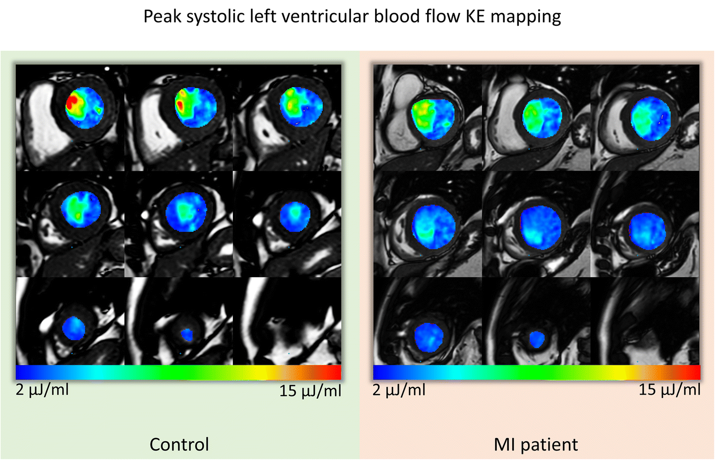 Left ventricular blood flow kinetic energy after myocardial