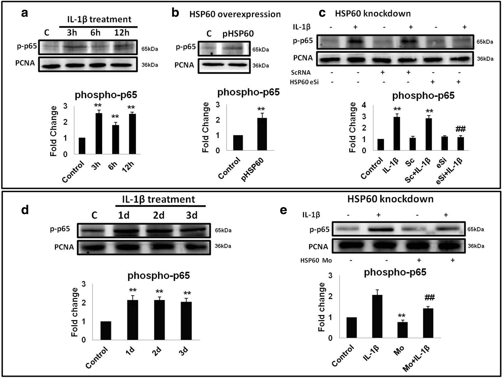 HSP60 critically regulates endogenous IL-1β production in