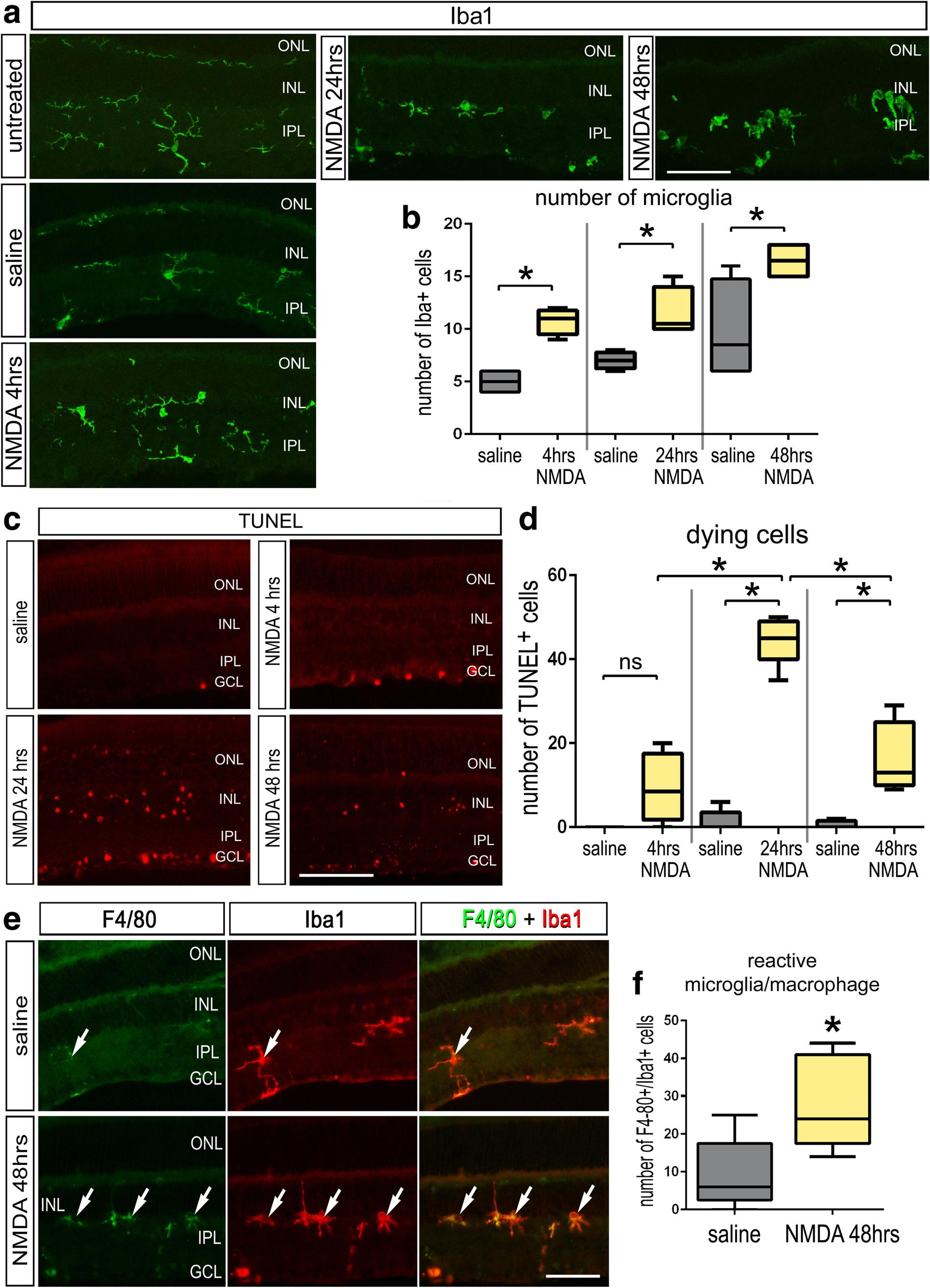 Reactive microglia and IL1β/IL-1R1-signaling mediate