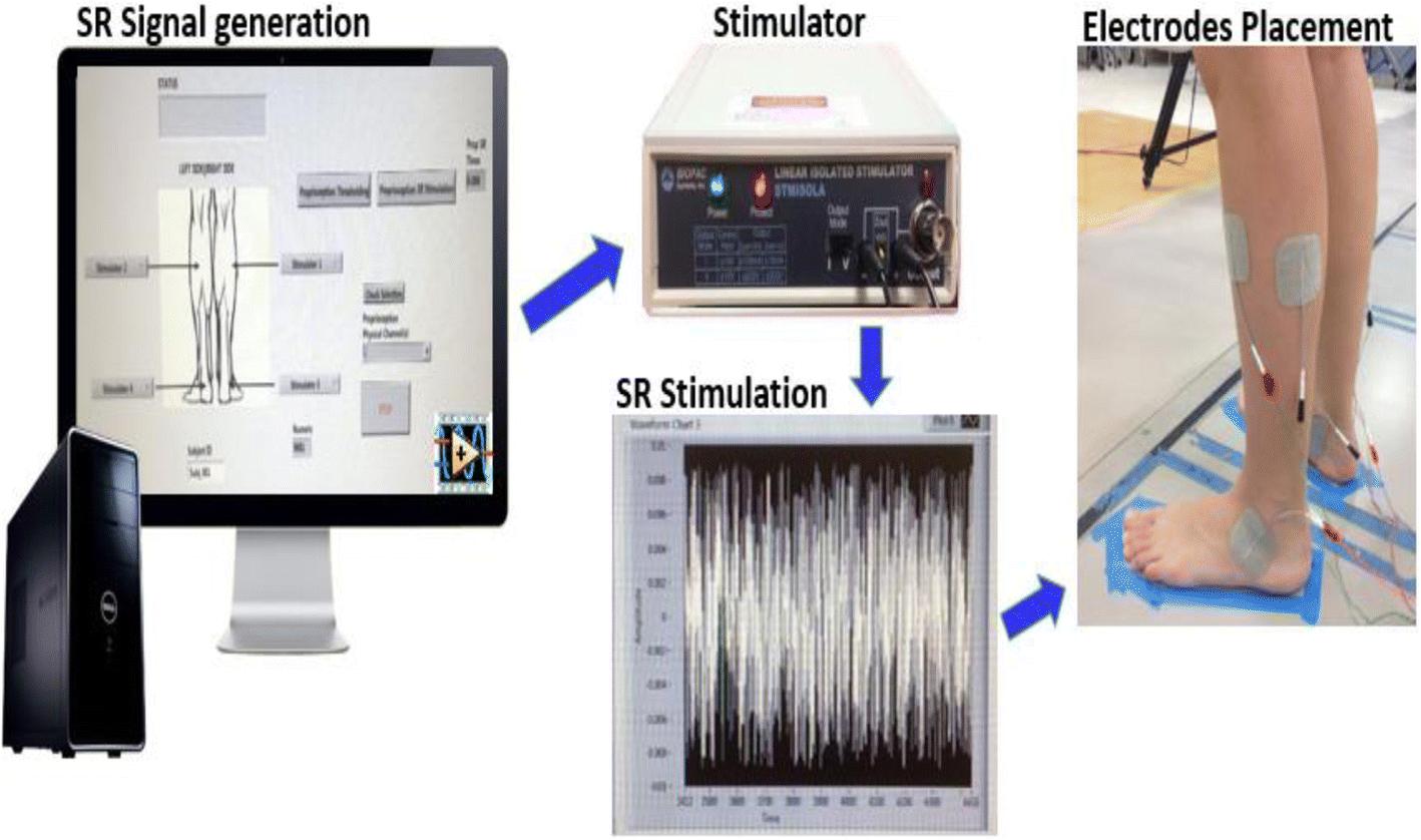 151344bd7b1f Stochastic resonance stimulation improves balance in children with ...