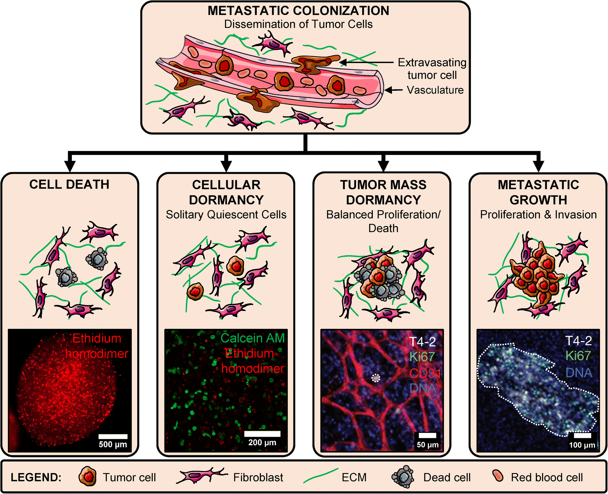 Engineered In Vitro Models of Tumor Dormancy and Reactivation
