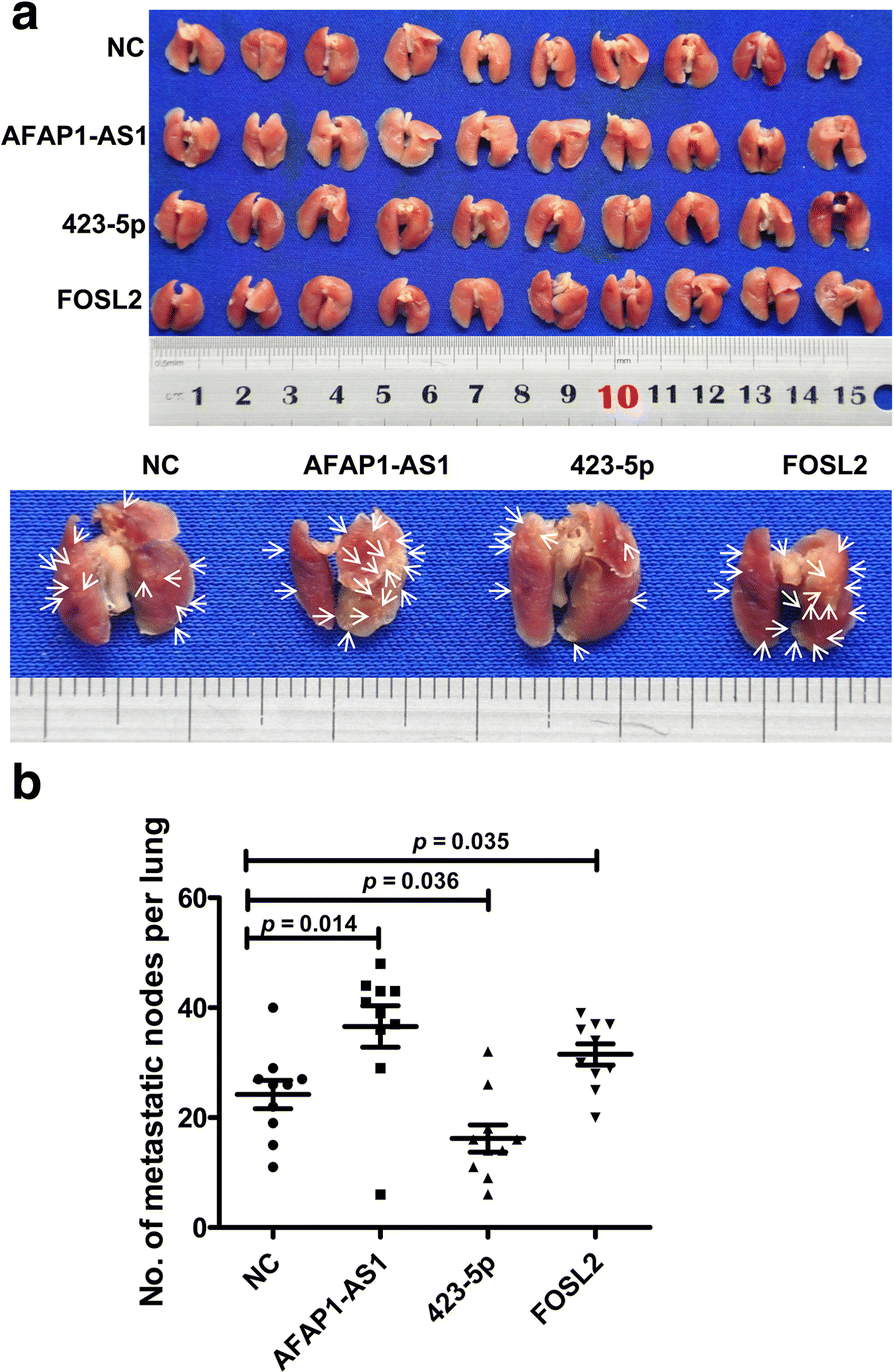 Long noncoding RNA AFAP1-AS1 acts as a competing endogenous