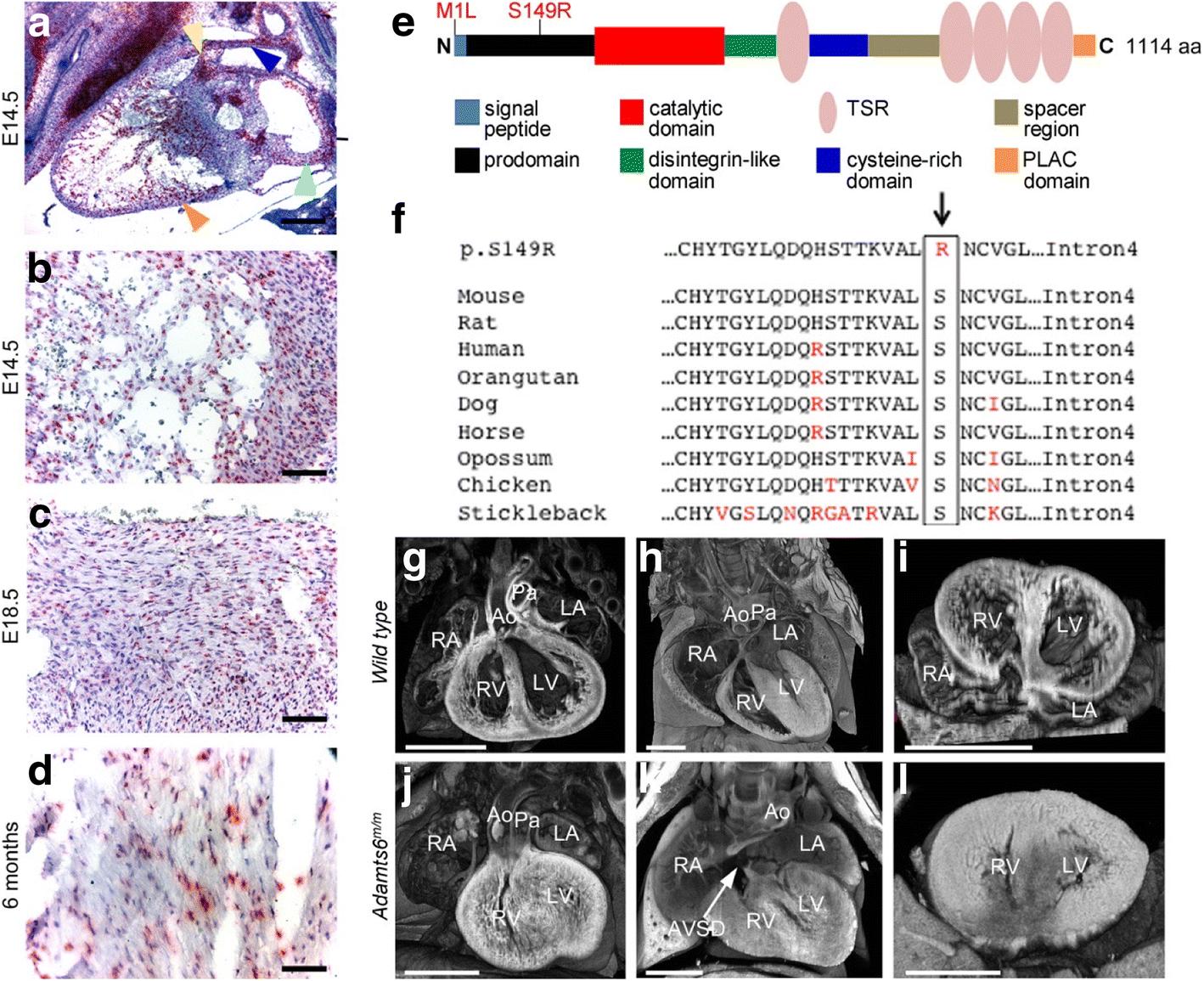 Exome-chip meta-analysis identifies novel loci associated