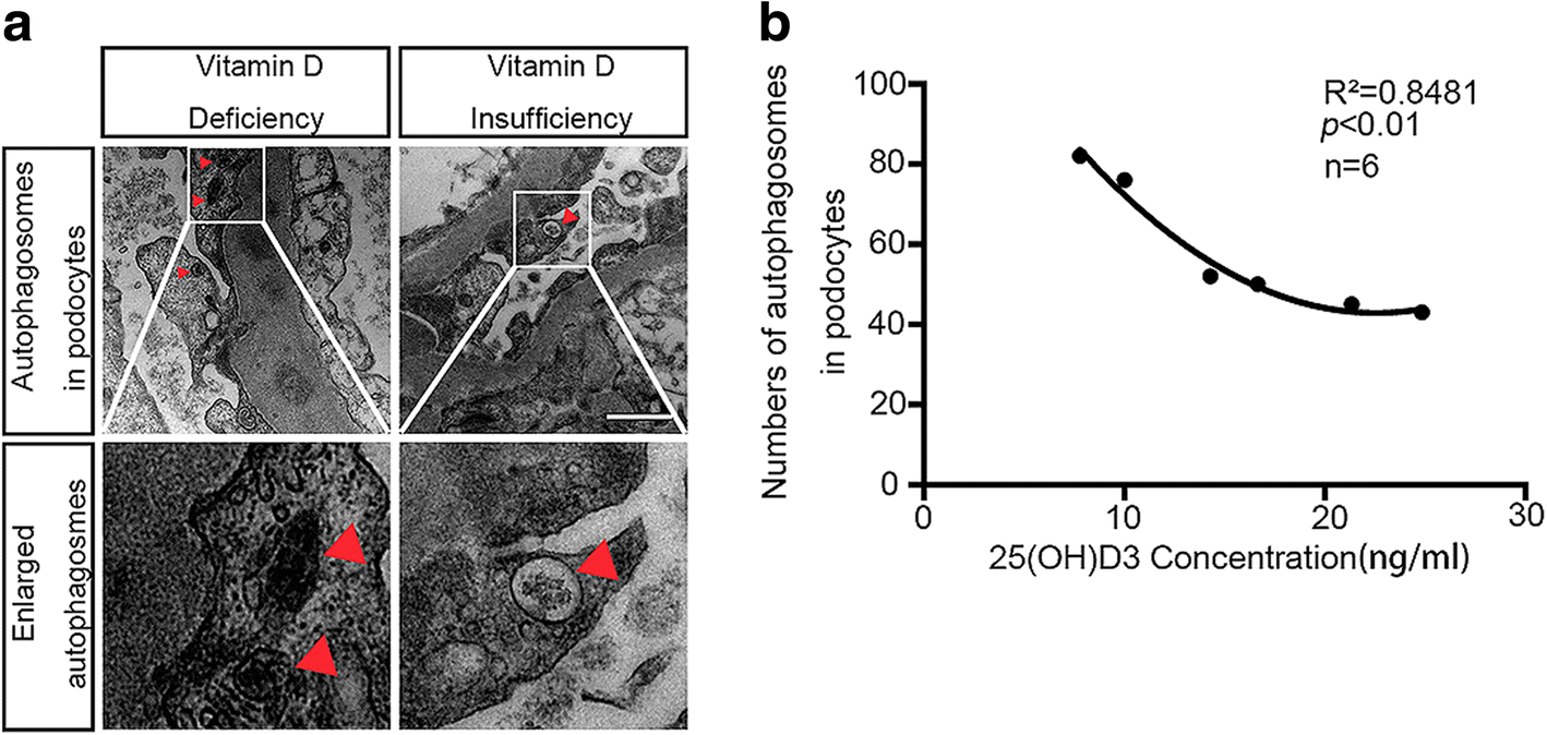 Vitamin D protects podocytes from autoantibodies induced