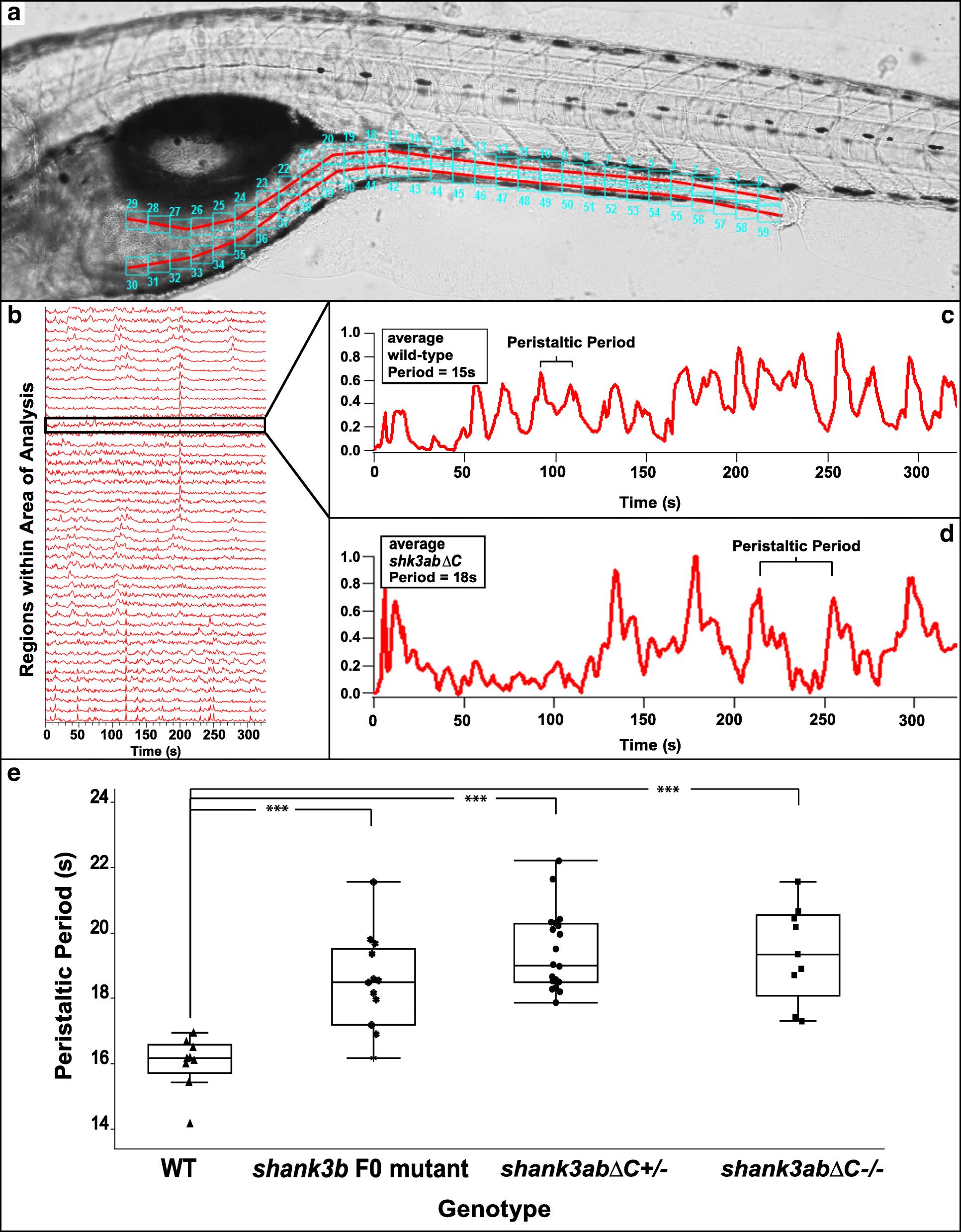 Intestinal dysmotility in a zebrafish ( Danio rerio) shank3a