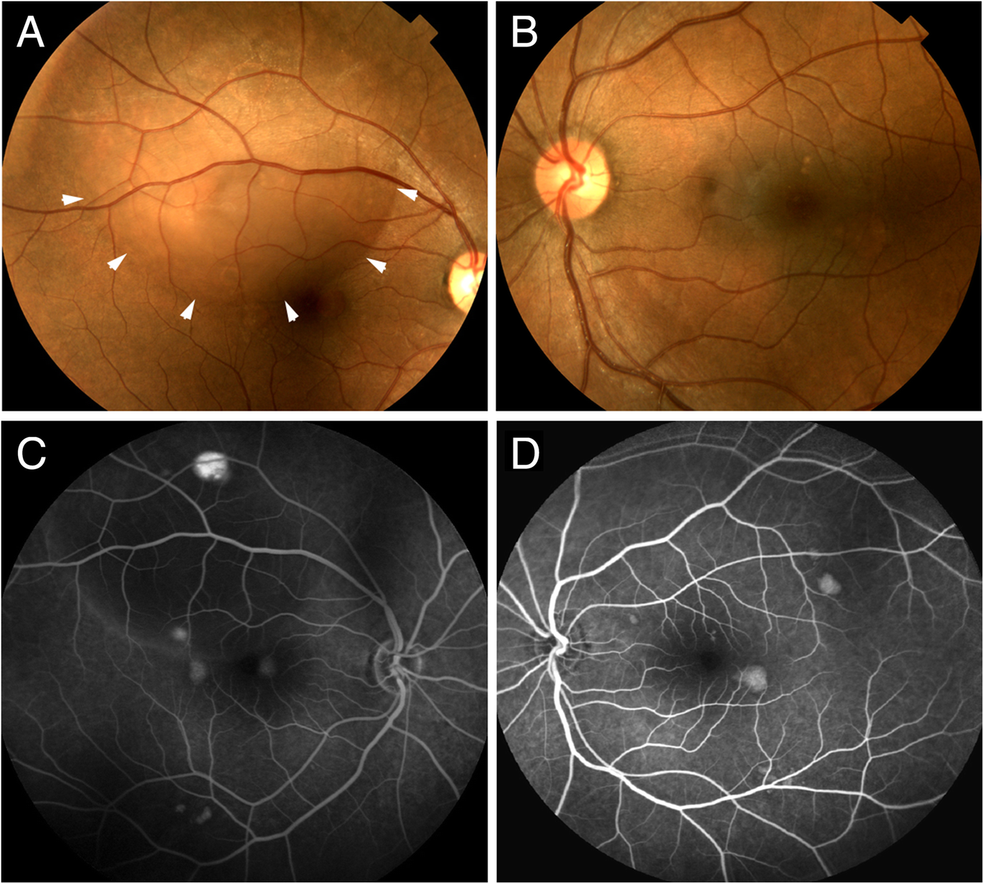 Central serous retinopathy associated with topical oral