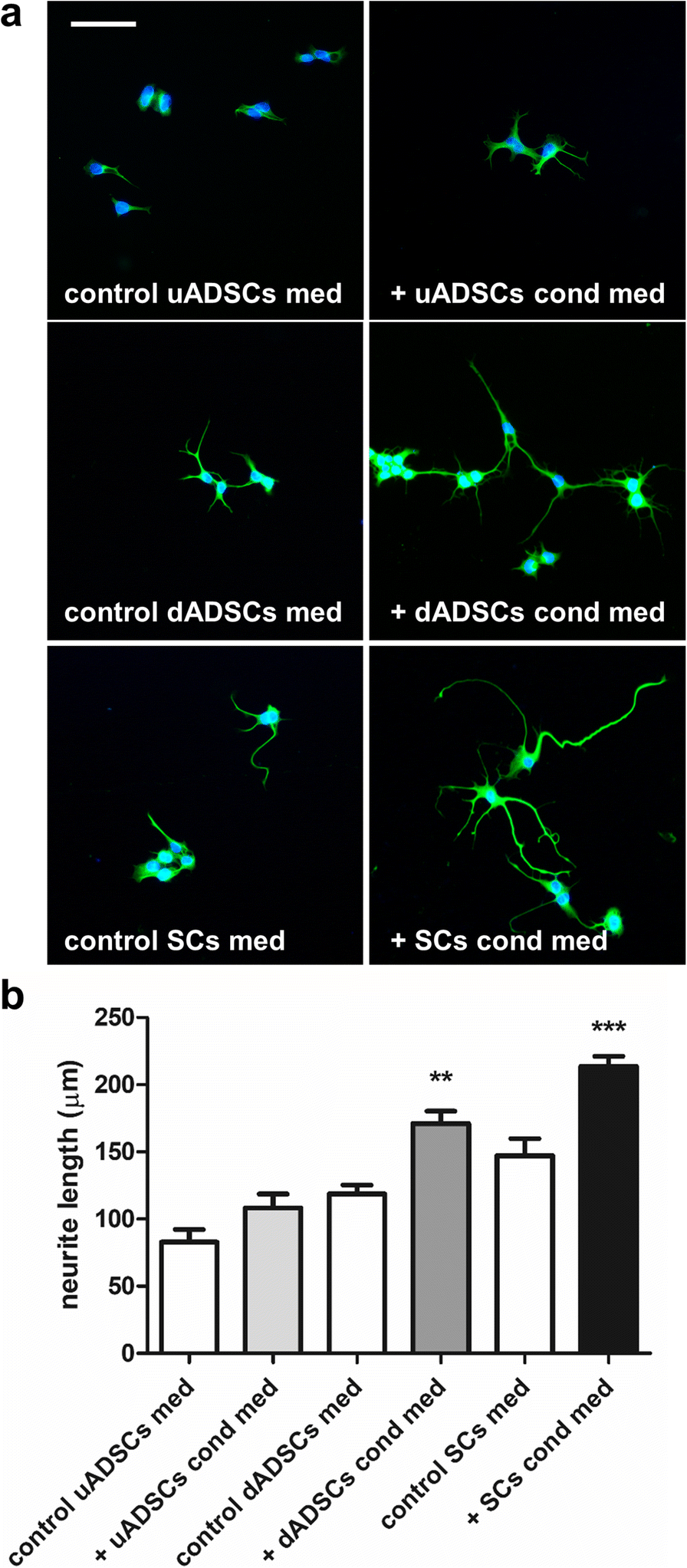 Schwann cell-like differentiated adipose stem cells promote