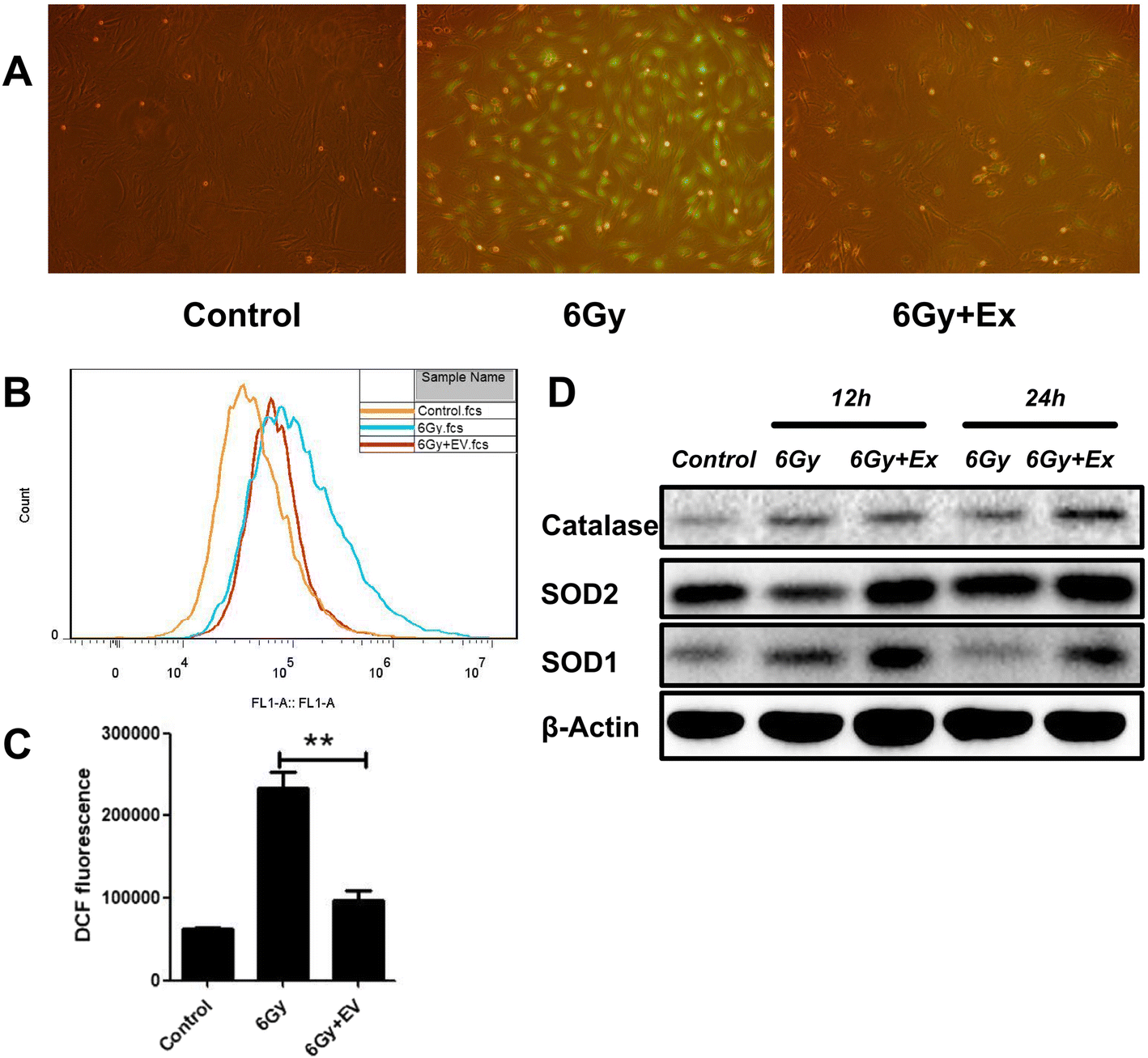 BM-MSC-derived exosomes alleviate radiation-induced bone loss by
