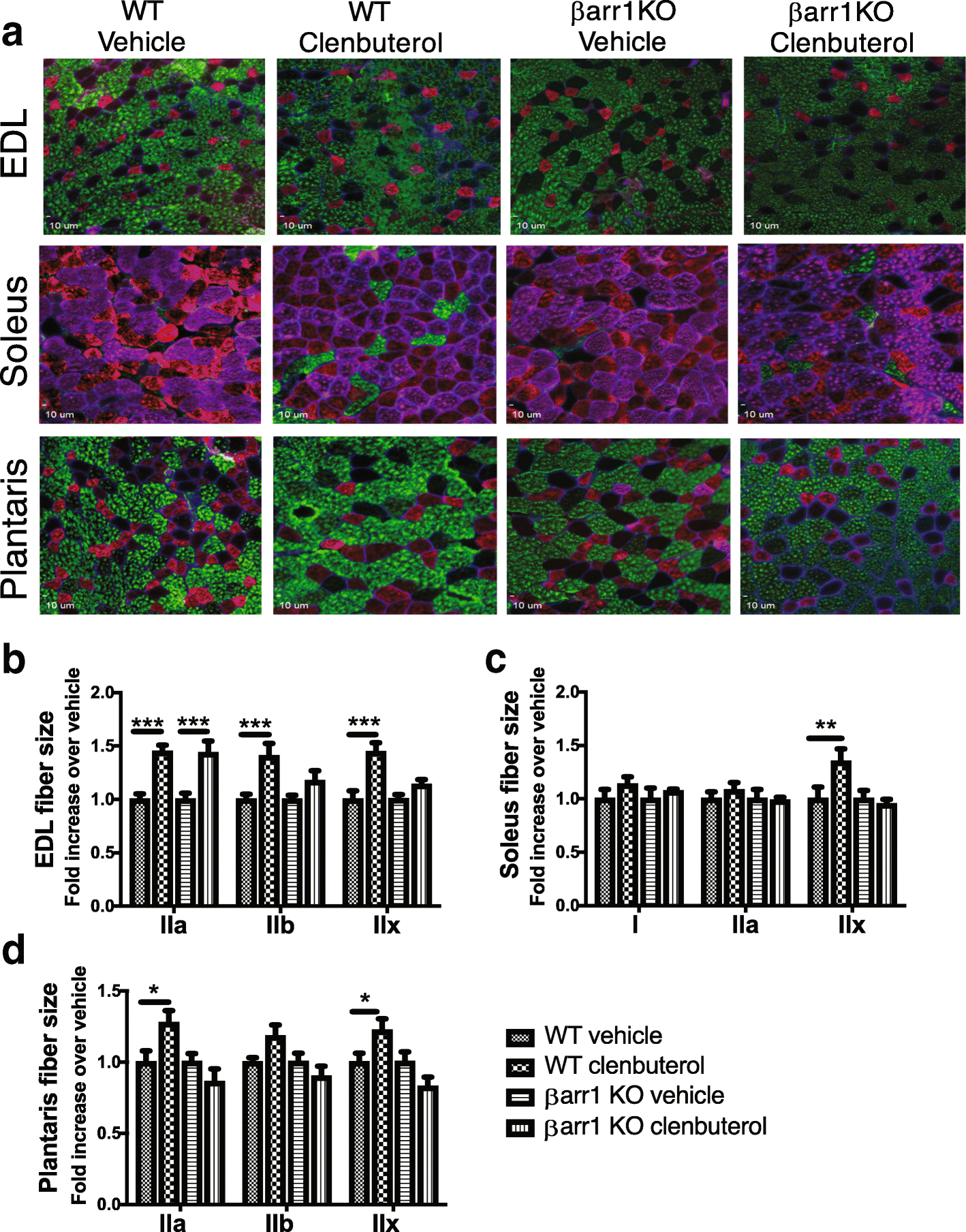 β-arrestin 1 regulates β2-adrenergic receptor-mediated skeletal