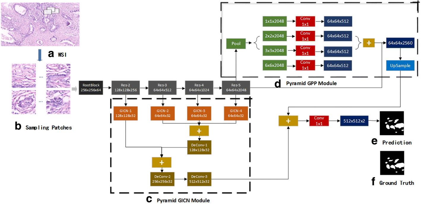 Large-scale tissue histopathology image segmentation based