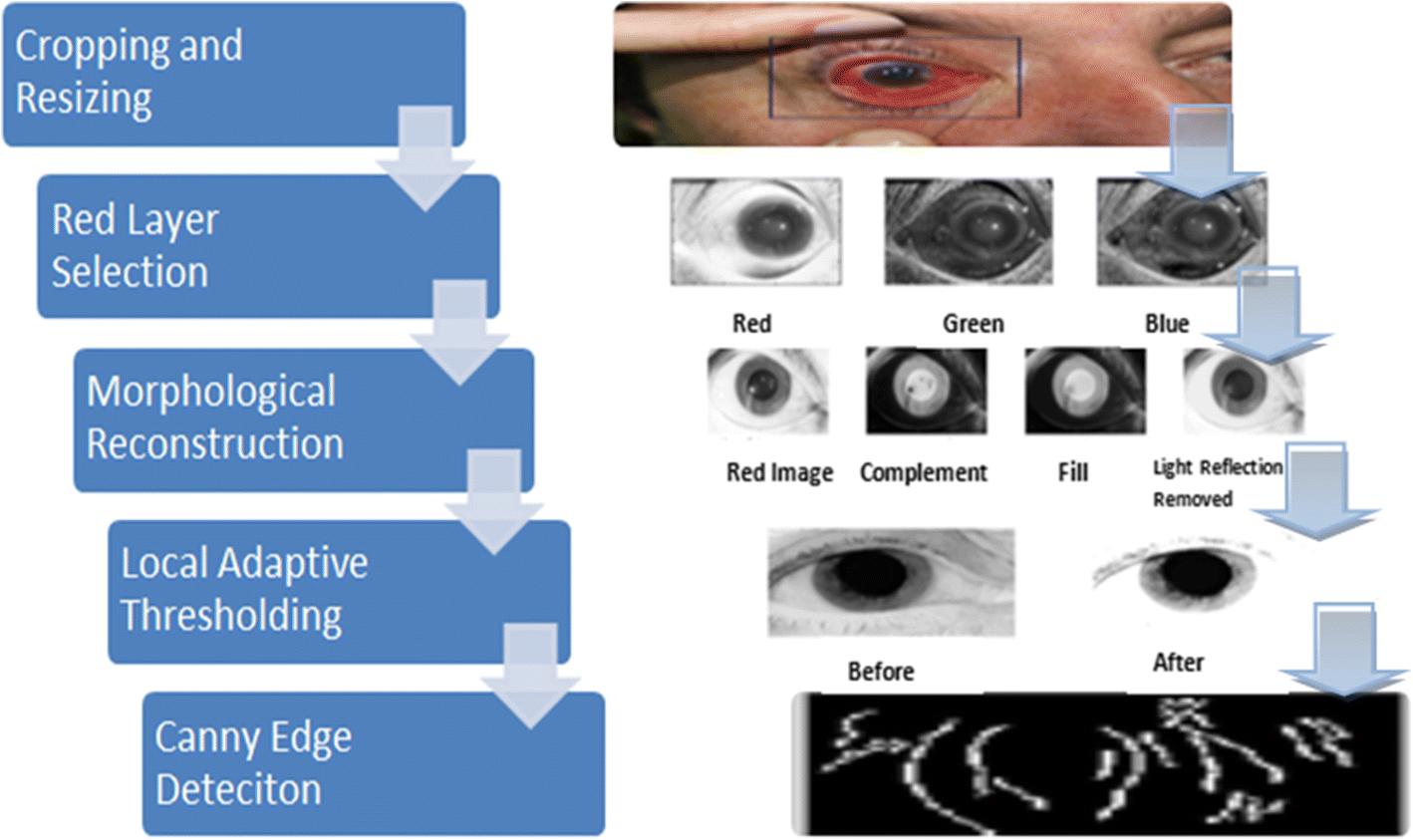 0f9d951a5de A smart intraocular pressure risk assessment framework using frontal ...